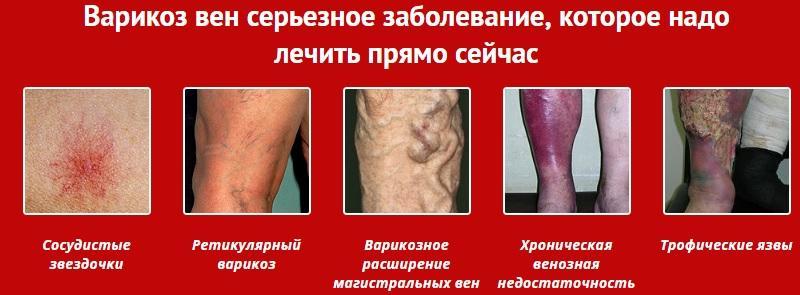 услуга лечения варикоза