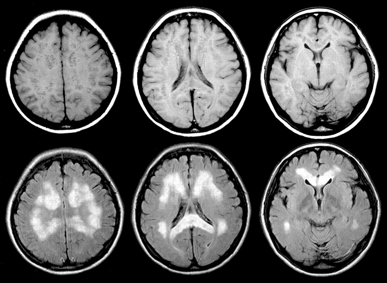 диагностика нервной системы