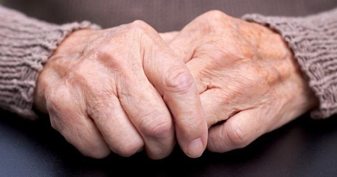 Паркинсонизм у пожилого
