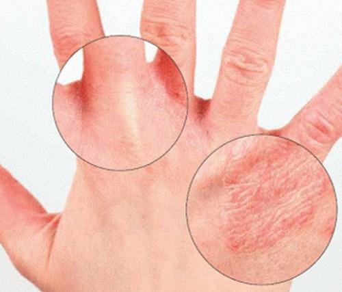 опрелость между пальцами