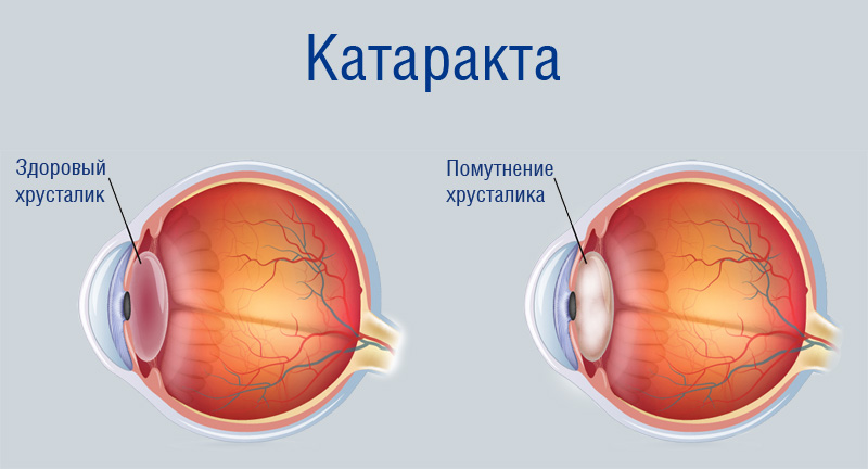 болезнь катаракта