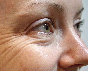 изменения кожи возле глаз