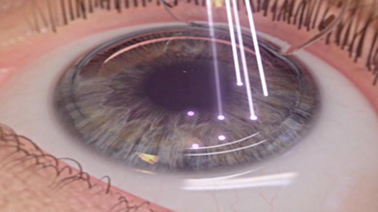 коррекция глаза