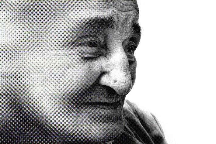 атрофическая деменция